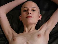 Skinny anorexia bald girl Kate from Thin Fetish posing nude on the bed